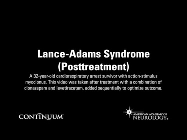 Lance-Adams Syndrome (Posttreatment)
