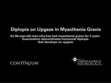 Diplopia on Upgaze in Myasthenia Gravis