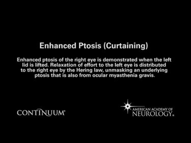 Enhanced Ptosis (Curtaining)