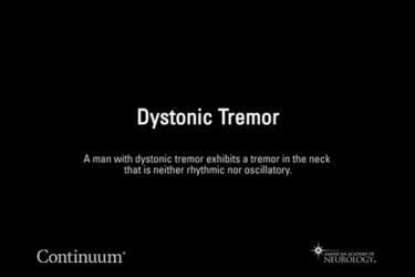 Dystonic tremor
