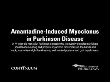 Amantadine-Induced Myoclonus in Parkinson Disease