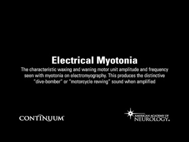 Electrical Myotonia