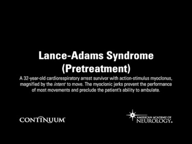 Lance-Adams Syndrome (Pretreatment)