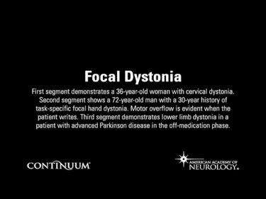 Focal Dystonia