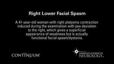 Right lower facial spasm