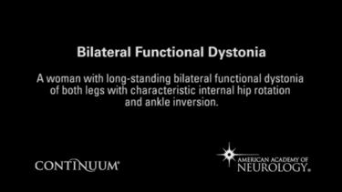 Bilateral functional dystonia.