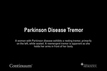 Parkinson disease tremor