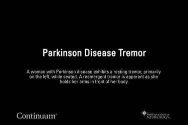 Parkinson disease tremor