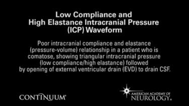 Low compliance and high elastance
