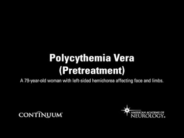 Polycythemia Vera (Pretreatment)