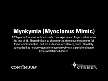Myokymia (Myoclonus Mimic)