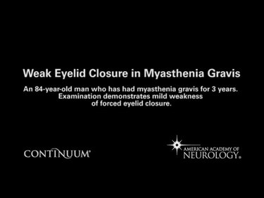 Weak Eyelid Closure in Myasthenia Gravis