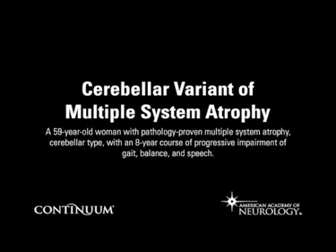 Cerebellar Variant of Multiple System Atrophy