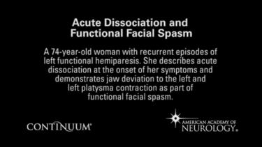 Acute dissociation and functional facial spasm