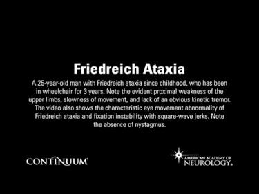 Friedreich Ataxia