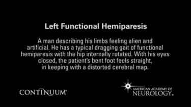 Functional left hemiparesis.
