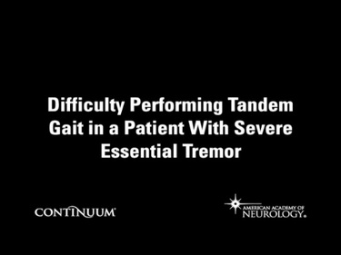 Difficulty Performing Tandem Gait in a Patient With Severe Essential Tremor