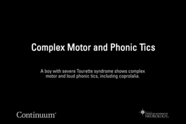 Complex motor and phonic tics