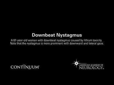 Downbeat nystagmus