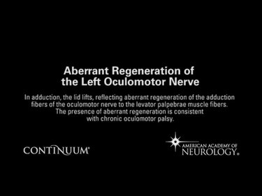 Aberrant regeneration of the left oculomotor nerve