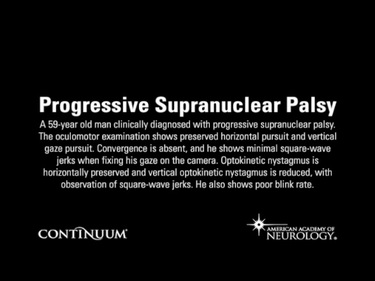 Progressive Supranuclear Palsy