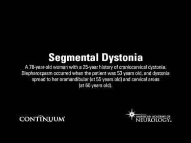 Segmental Dystonia