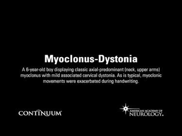 Myoclonus-Dystonia