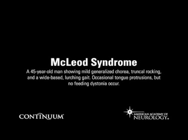 McLeod Syndrome