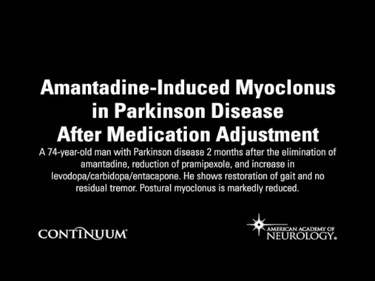 Amantadine-Induced Myoclonus in Parkinson Disease After Medication Adjustment