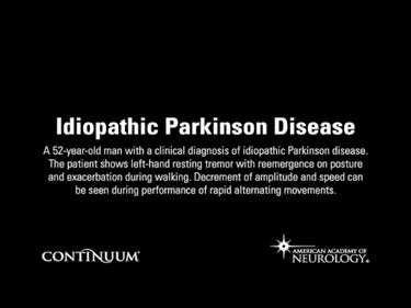 Idiopathic Parkinson Disease