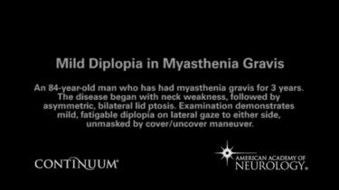 Mild Diplopia in Myasthenia Gravis
