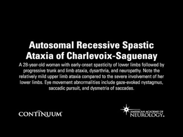 Autosomal Recessive Spastic Ataxia of Charlevoix-Saguenay