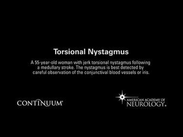 Torsional nystagmus