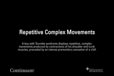 Repetitive complex movements