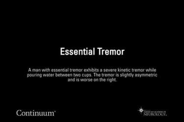 Essential Tremor