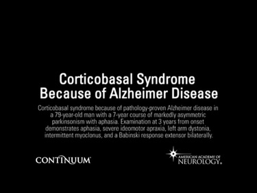 Corticobasal Syndrome Due to Alzheimer Disease