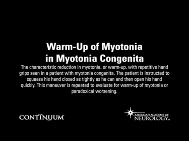Warm-Up of Myotonia in Myotonia Congenita