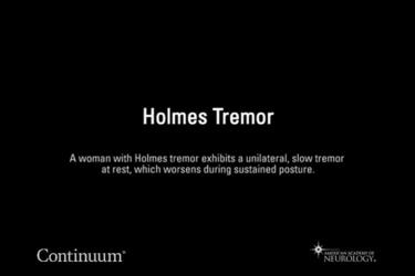 Holmes tremor