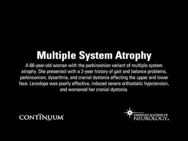 Multiple System Atrophy