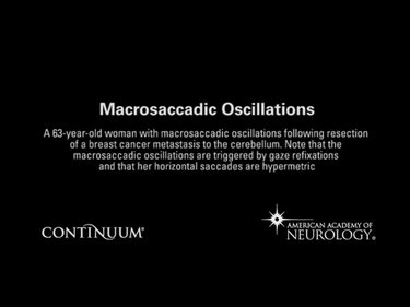 Macrosaccadic oscillations