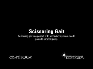 Scissoring Gait