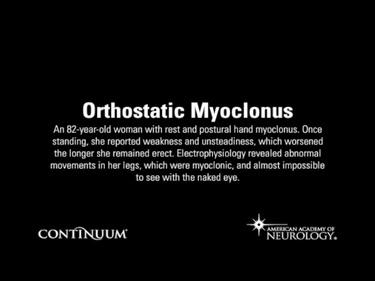Orthostatic Myoclonus