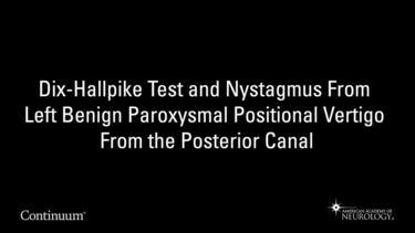 Dix-Hallpike test and nystagmus from left benign paroxysmal positional vertigo from the posterior canal