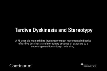 Tardive dyskinesia and stereotypy