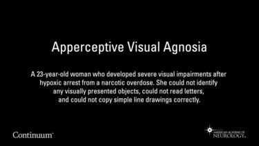 Apperceptive Visual Agnosia