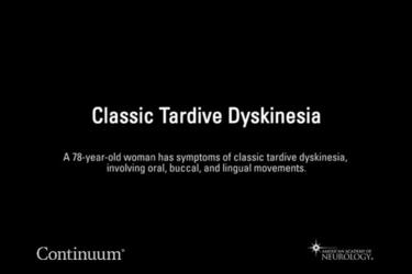 Classic tardive dyskinesia.
