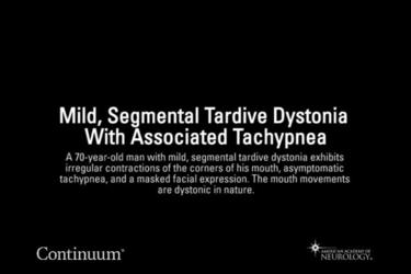 Mild, segmental tardive dystonia with associated tachypnea