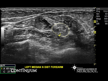 Video and Still Image Contrasting the Median Nerve in a Healthy Patient With the Median Nerve in a Patient With Chronic Inflammatory Demyelinating Polyradiculoneuropathy (CIDP)