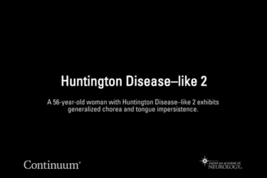 Huntington disease–like 2