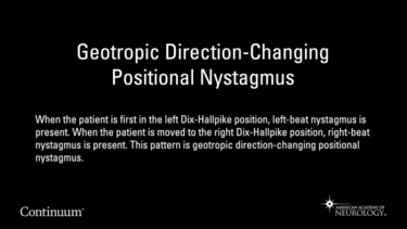 Geotropic direction-changing positional nystagmus
